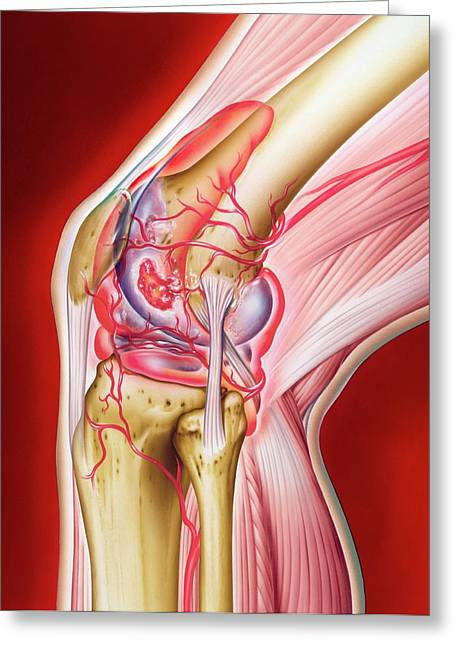 Knee In Rheumatoid Arthritis Greeting Card
