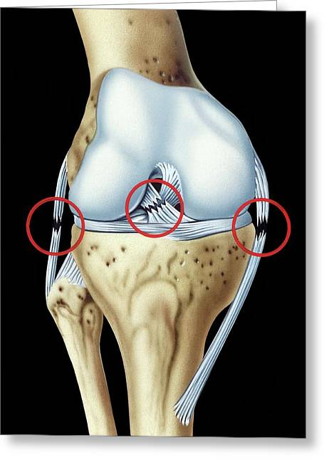 Knee Ligament Injuries Greeting Card by John Bavosi