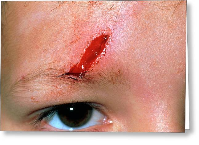 Laceration Above The Eye Of A 5 Year Old Boy Greeting Card by Dr P. Marazzi/science Photo Library