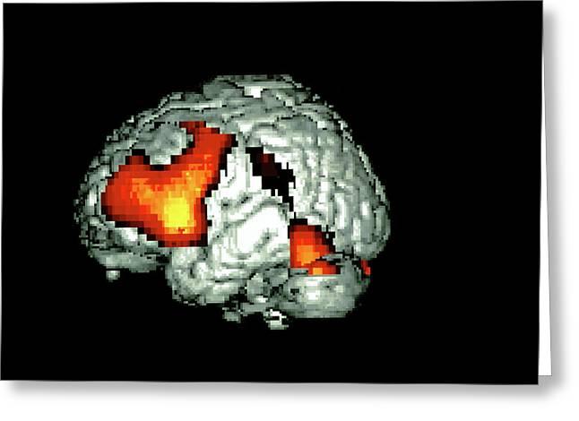 Language-generation Brain Activity Greeting Card
