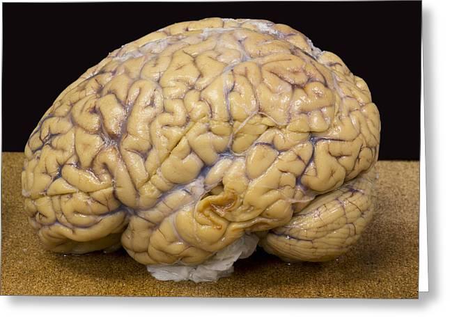 Left Human Cerebrum And Cerebellum Greeting Card