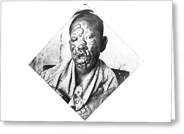 Leprosy Patient Greeting Card by National Library Of Medicine