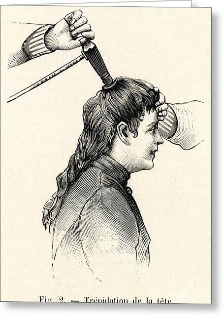 Liedbeck Vibrator 1901 Greeting Card
