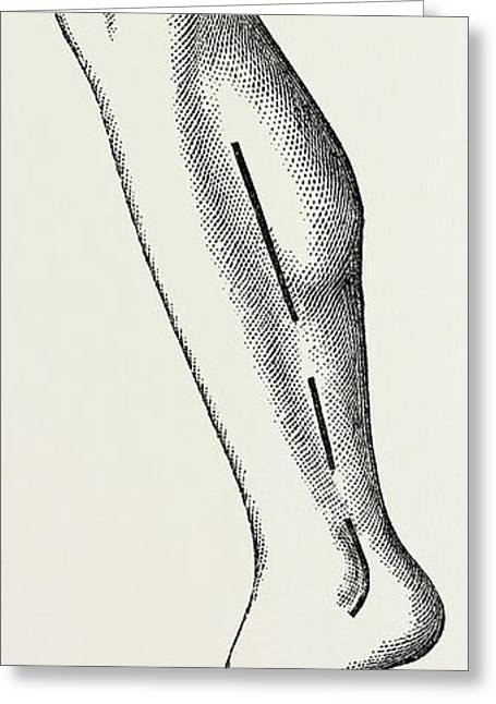 Ligature, Medical Equipment, Surgical Instrument Greeting Card by Litz Collection