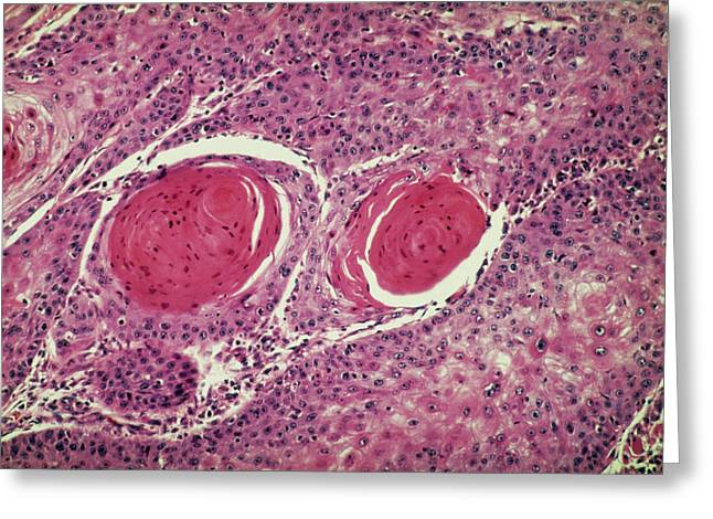 Light Micrograph Of Squamous Cell Carcinoma Greeting Card by Science Photo Library.
