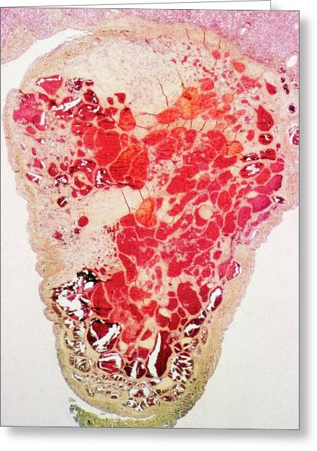 Liver Haemangioma Greeting Card