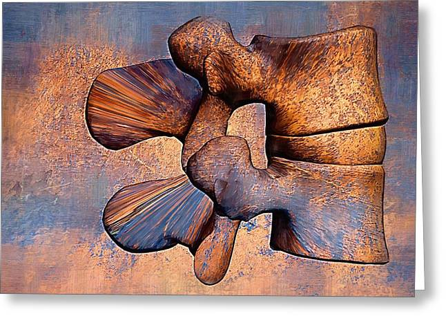 Lumbar Spine Greeting Card by Joseph Ventura