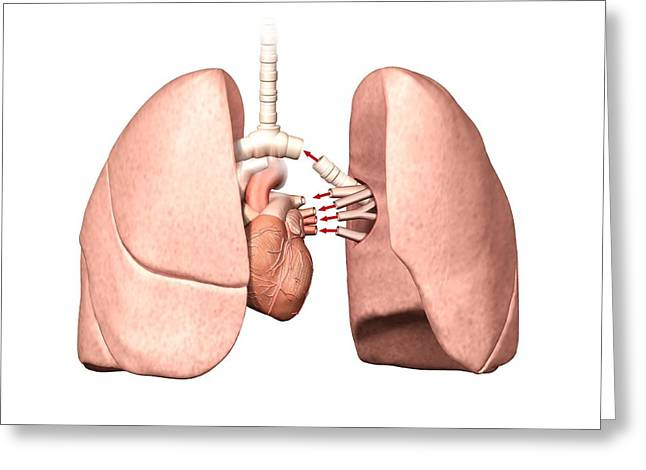 Lung Operation Greeting Card by Henning Dalhoff