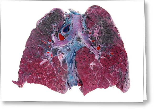 Lung Silicosis Greeting Card by Microscape