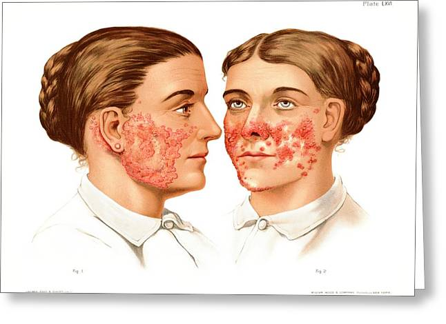 Lupus Erythematosus And Vulgaris Greeting Card by Us National Library Of Medicine/science Photo Library