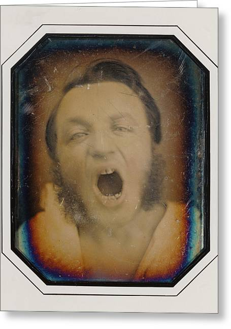 Man With Open Mouth Unknown Maker, French About 1852 Greeting Card by Litz Collection