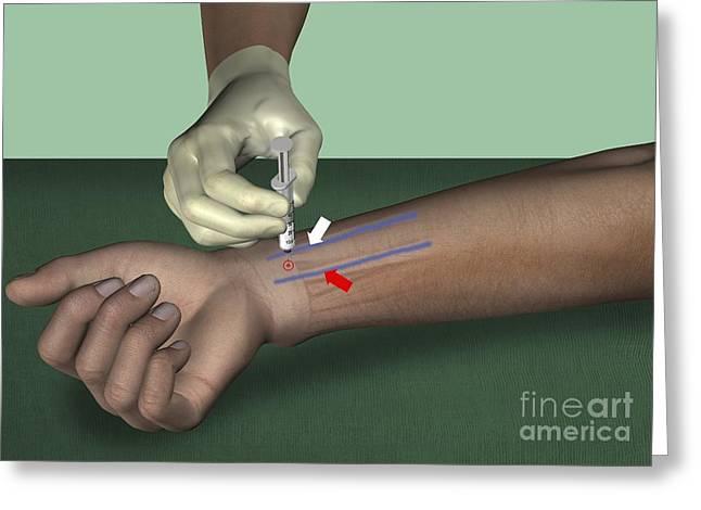 Median Nerve Wrist Block, Artwork Greeting Card
