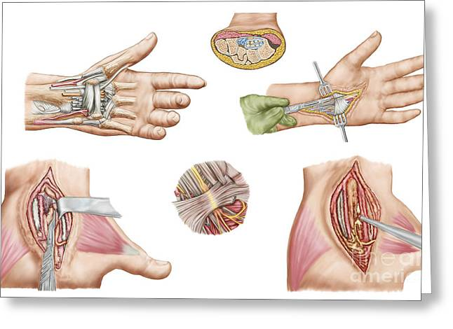 Medical Illustration Showing Carpal Greeting Card
