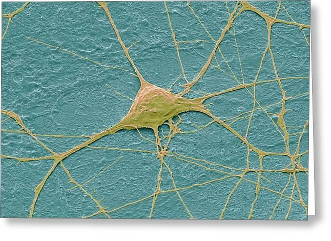 Motor Neurone Greeting Card by Steve Gschmeissner