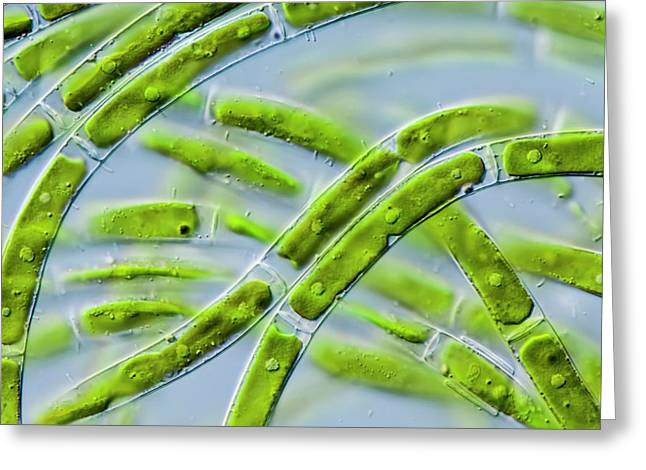 Mougeotia Sp. Green Alga Greeting Card by Gerd Guenther