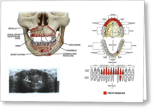 Mouth And Facial Fractures Surgery Greeting Card