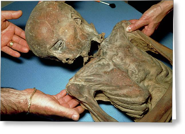 Mummified Body Of A Boy Dating From Around 1600 Greeting Card