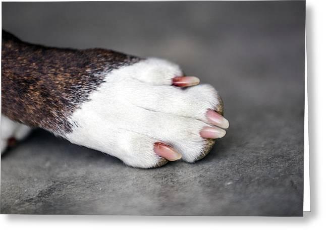 Nail Biter Greeting Card by Sennie Pierson