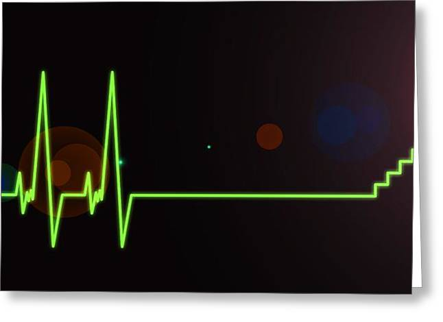 Near-death Experience, Heartbeat Trace Greeting Card