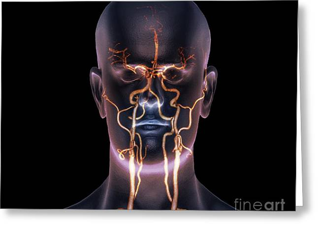 Neck And Head Arteries, Mra Scan Greeting Card