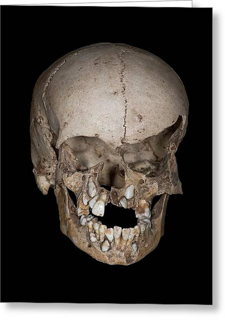 Neolithic Child's Skull Greeting Card by David Parker