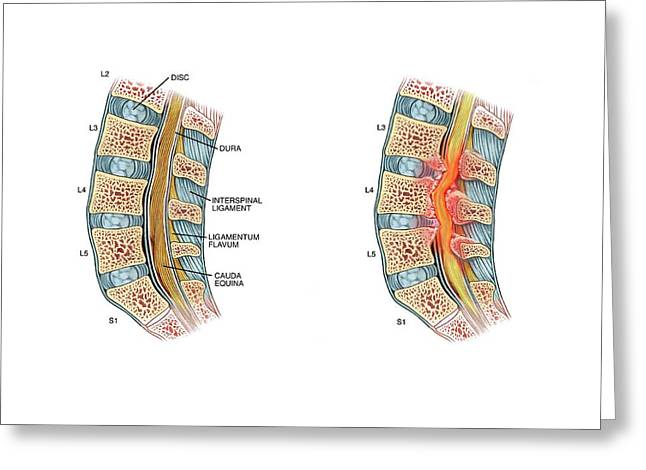 Nerve Compression In Lumbar Stenosis Greeting Card