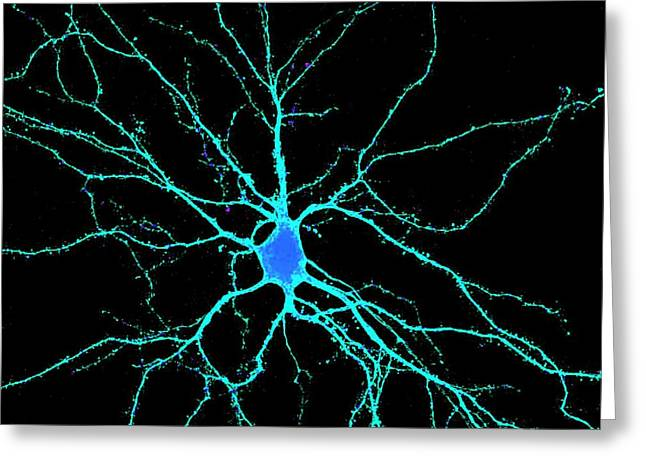 Neuron Greeting Card by Dr. Chris Henstridge