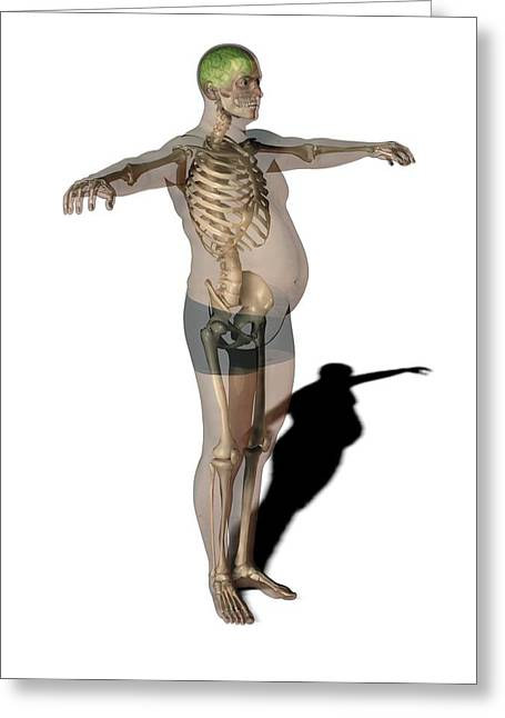 Obese Man, Anatomical Artwork Greeting Card by Science Photo Library