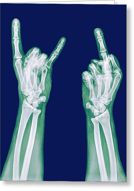 Obscene Gestures X-ray Greeting Card