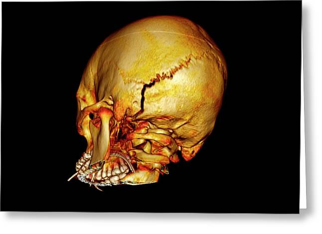 Occipital Skull Fracture Greeting Card