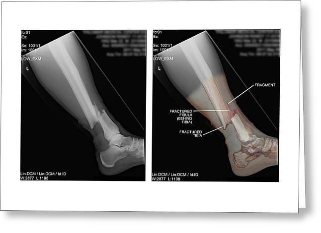 Open Fracture Of Tibia And Fibula Greeting Card by John T. Alesi