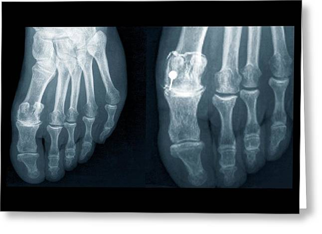 Osteoarthritis Of The Foot Greeting Card by Zephyr