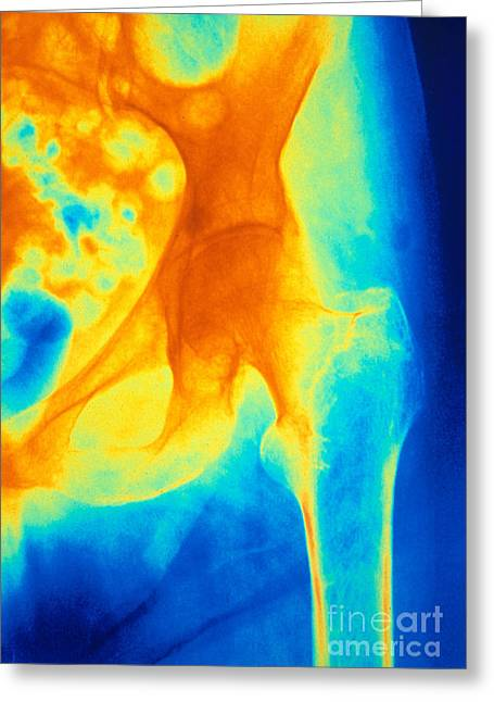 Osteoporosis Of The Hip, X-ray Greeting Card by Scott Camazine