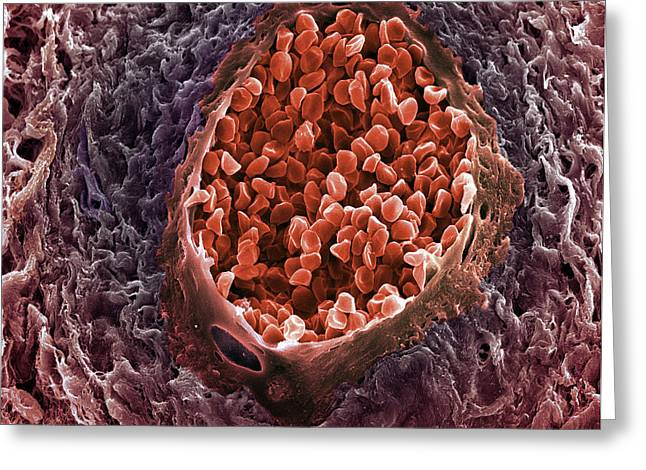 Ovarian Cancer Blood Vessel Greeting Card by Steve Gschmeissner
