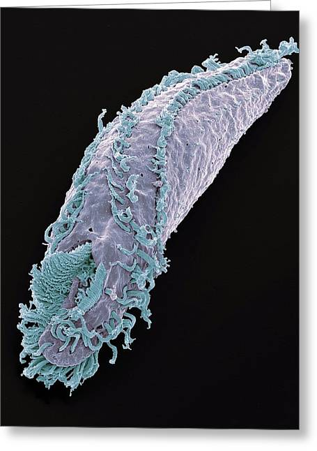 Oxytricha Ciliate Protozoan Greeting Card by Steve Gschmeissner