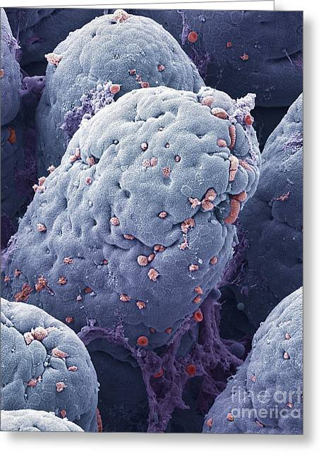 P5200228 - Intestinal Lining Sem Greeting Card by Spl