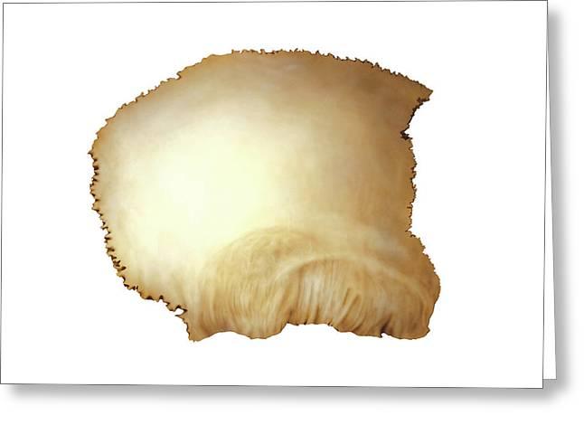 Parietal Bone Greeting Card by Asklepios Medical Atlas