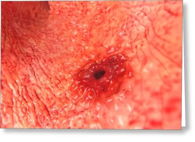 Peptic Ulcer Greeting Card