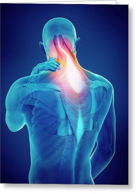 Person With Neck Pain Greeting Card by Sebastian Kaulitzki/science Photo Library