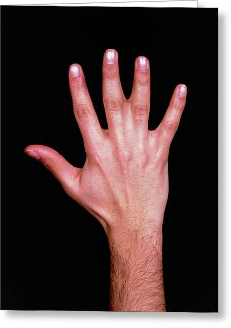 Photo Showing Congenital Fusion Of 2 Fingers Greeting Card