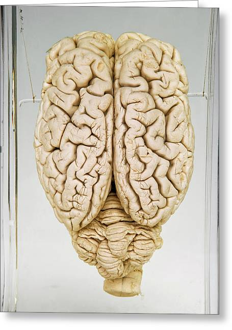Pig Brain Greeting Card by Ucl, Grant Museum Of Zoology