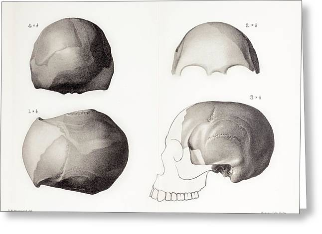 Piltdown Man Skull Greeting Card by Paul D Stewart