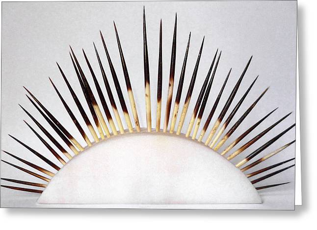Porcupine Quills Greeting Card by Ucl, Grant Museum Of Zoology