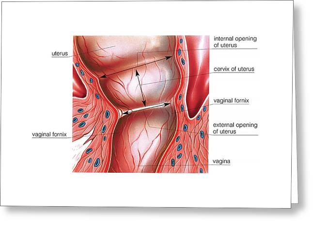 Postpartum Cervix Greeting Card by Asklepios Medical Atlas