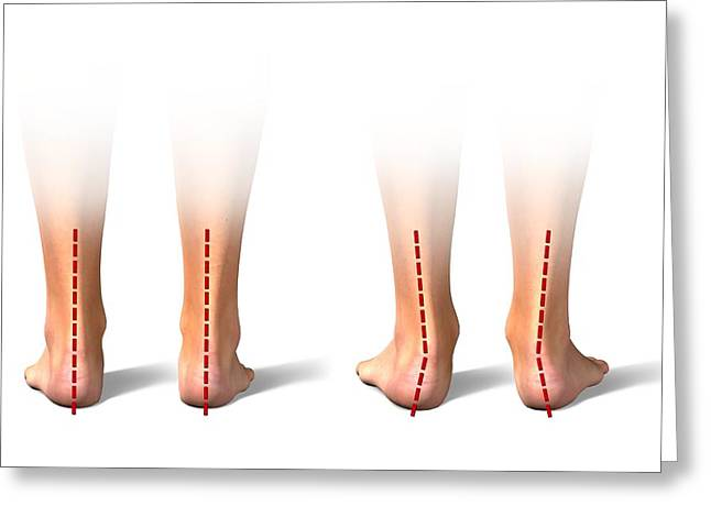 Pronation Of The Feet. Artwork Greeting Card by Science Photo Library