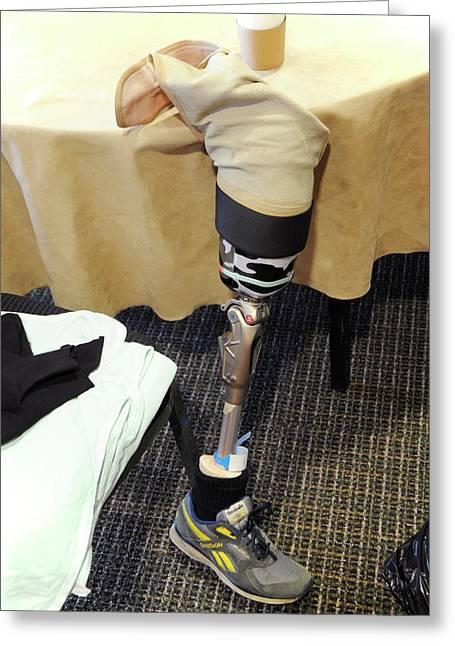 Prosthetic Leg Greeting Card by Public Health England