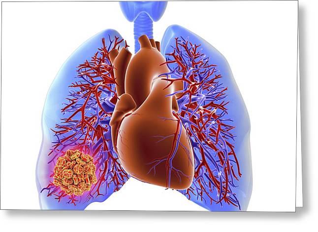 Pulmonary Embolism Greeting Card