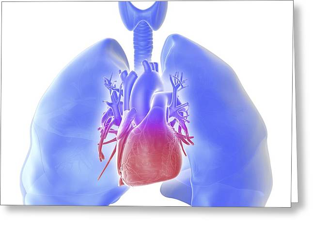 Pulmonary Hypertension, Artwork Greeting Card by Science Photo Library
