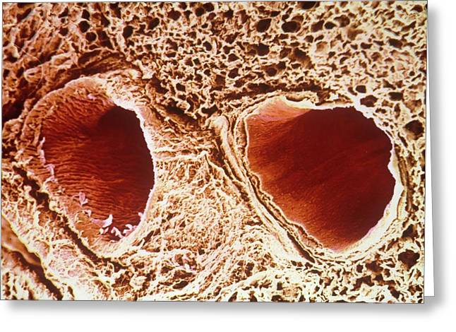 Pulmonary Vein And Artery Greeting Card by Pir/cnri