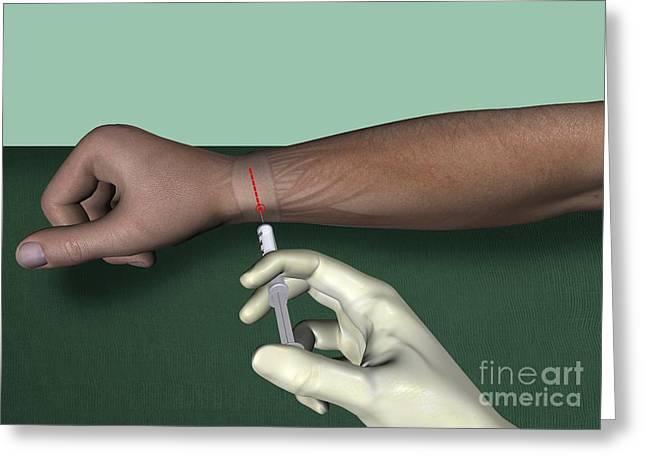 Radial Nerve Wrist Block, Artwork Greeting Card